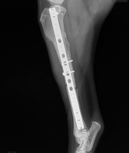 Orthopedic Surgery - Clovis, Sanger, Fresno, 93611